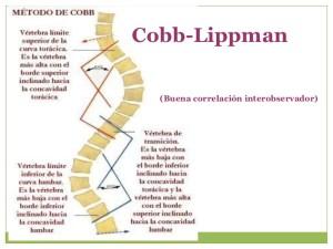 Deformidades de la Columna - método Cobb